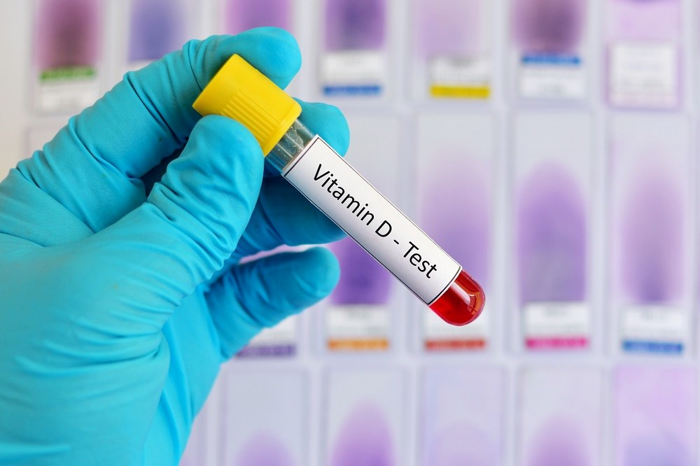 Vitamin D is one of the environmental factors that may be involved in the etiopathogenesis of multiple sclerosis.