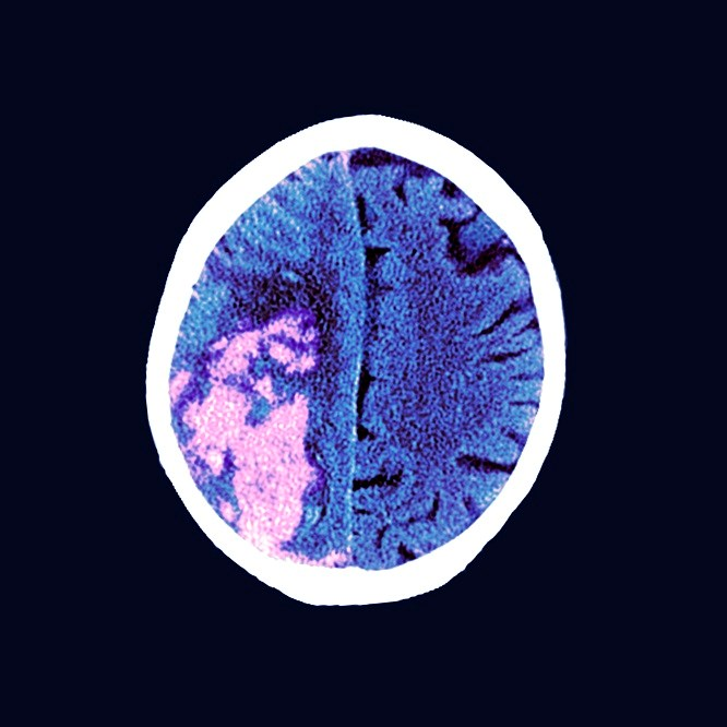 The study compared the use of high- vs low-intensity statin therapy after ischemic stroke.