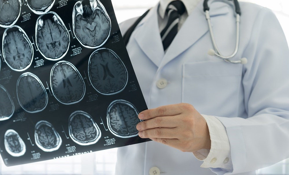 Switch to Alemtuzumab Reduces MS Disease Activity
