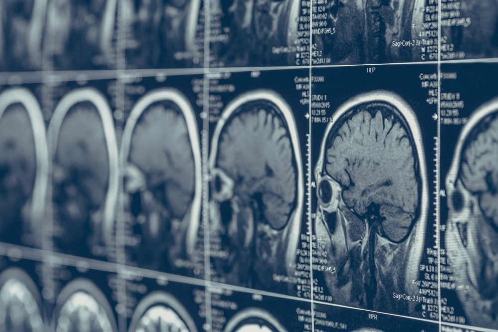 Drug May Slow Conversion to Definite MS From Clinically Isolated Syndrome