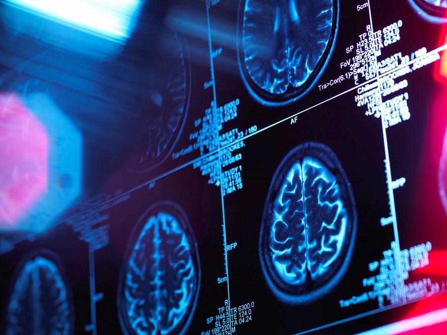 Predicting Alzheimer Dementia Risk With CSF, MRI Clinical Biomarkers