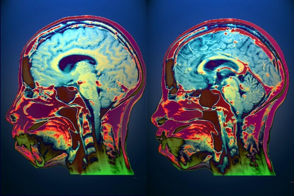 Immunosuppressive Therapies May Reduce Relapse in Neurosarcoidosis