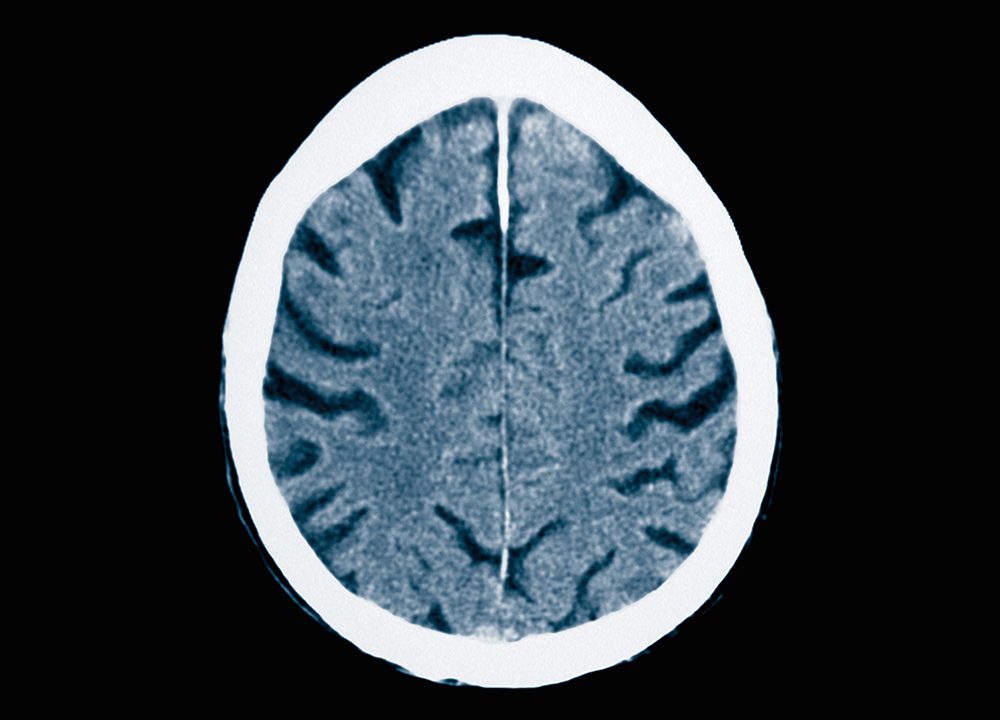 Late-Life Brain Volume Associated With Midlife Systemic Inflammation