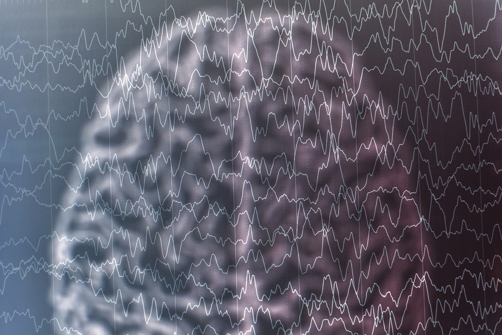 Posttraumatic epilepsy is characterized by a pattern of spontaneous, recurrent, and chronic seizures.