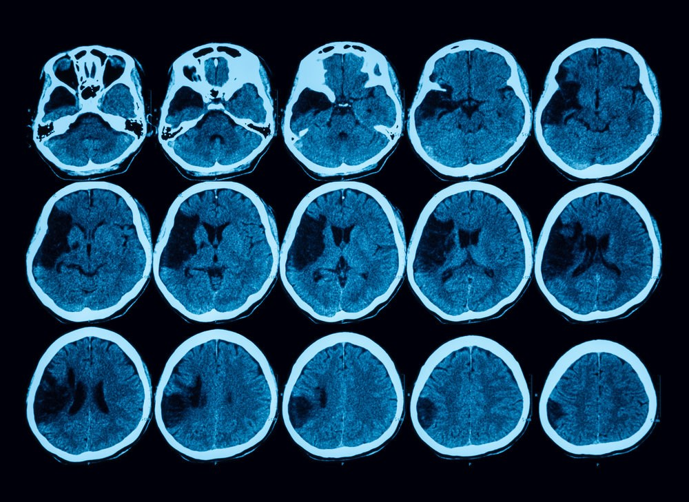Stroke Risk Reduced With Declining Total Homocysteine Levels