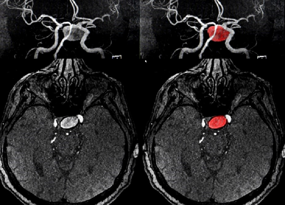 Bone mineral density affects risk of and size of intracranial aneurysm.