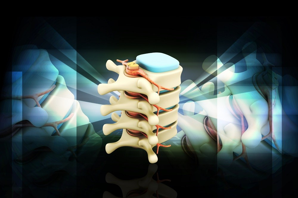 Spinal Cord Stimulation Reduces Pain Associated With Diabetic Polyneuropathy