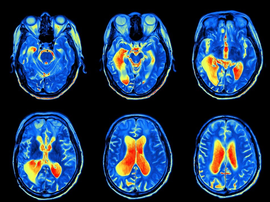 Alterations in Cerebral Morphometrics Can Help Identify ADHD