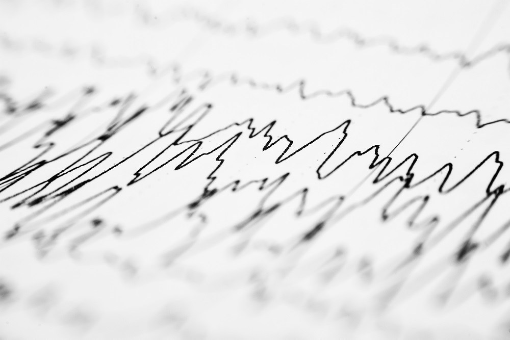Eslicarbazepine Acetate Reduces Seizures in Drug-Resistant Partial Epilepsy