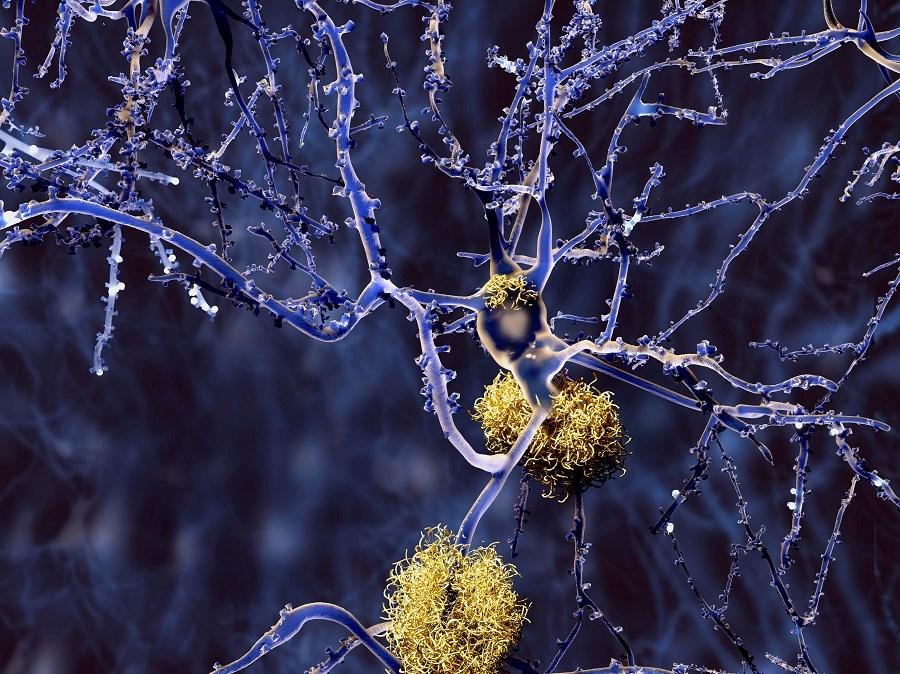 Obstructive Sleep Apnea May Increase Amyloid Burden