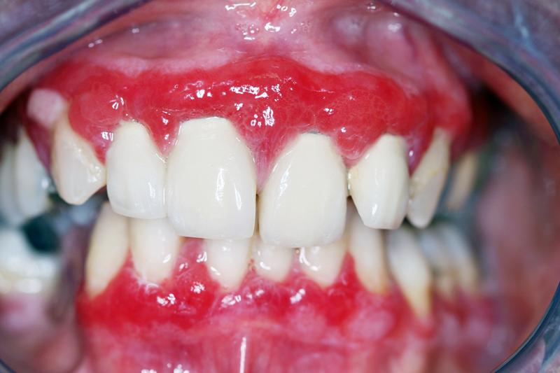 mucous membrane pemphigoid mucous membrane cicatricial