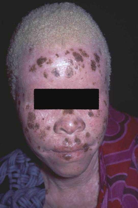 Oculocutaneous Albinism