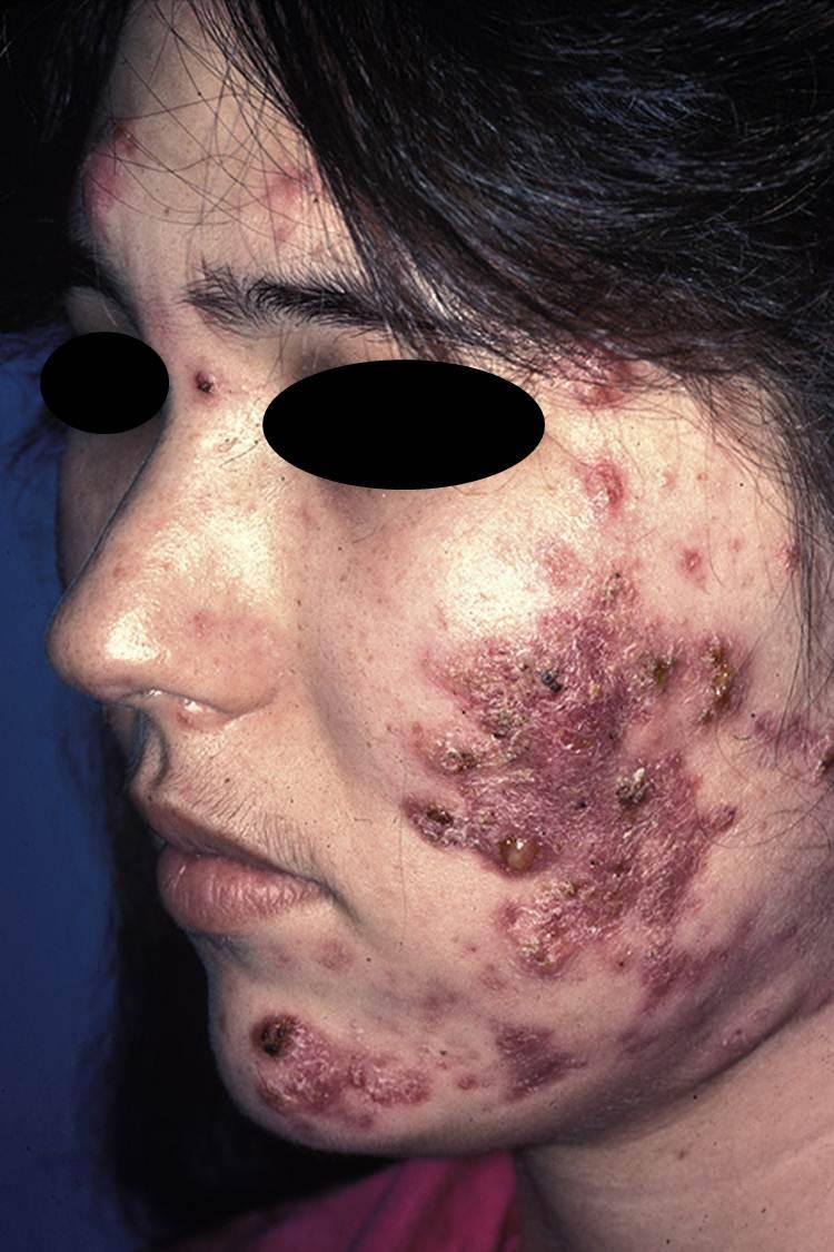 Rosacea Fulminans (Pyoderma Faciale)