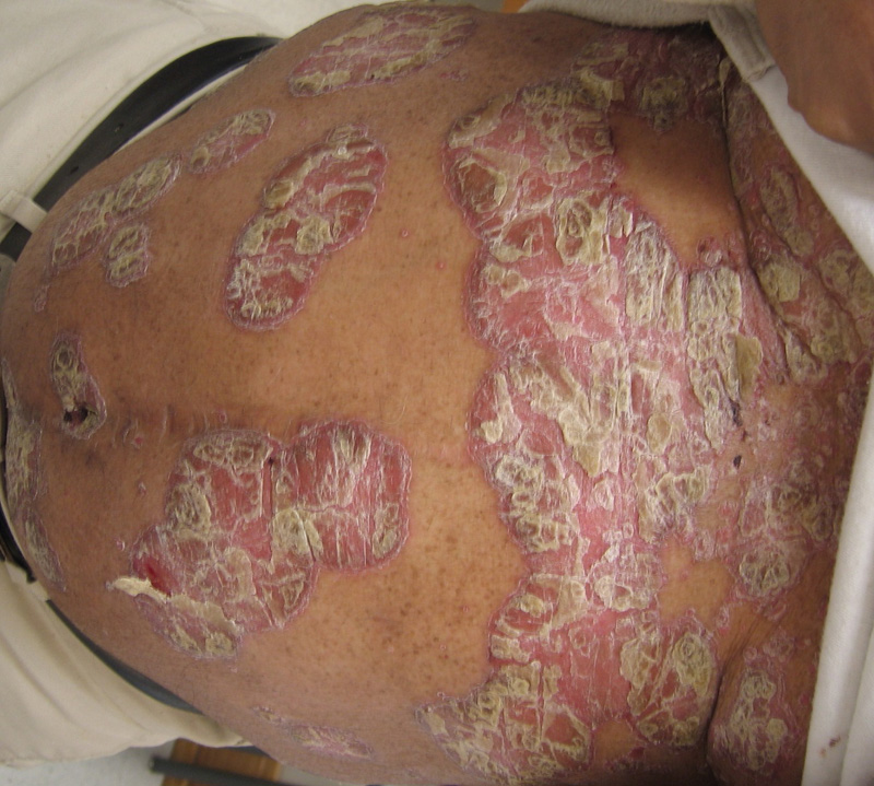 guttate psoriasis topical steroids