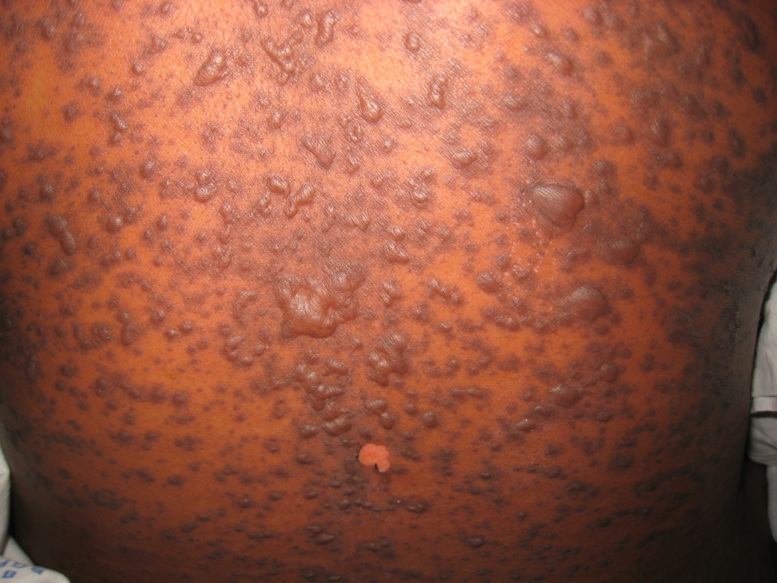 toxic epidermal necrolysis Toxic epidermal necrolysis as a cause of symptoms or medical conditions when considering symptoms of toxic epidermal necrolysis , it is also important to consider toxic epidermal necrolysis as a possible cause of other medical conditions.