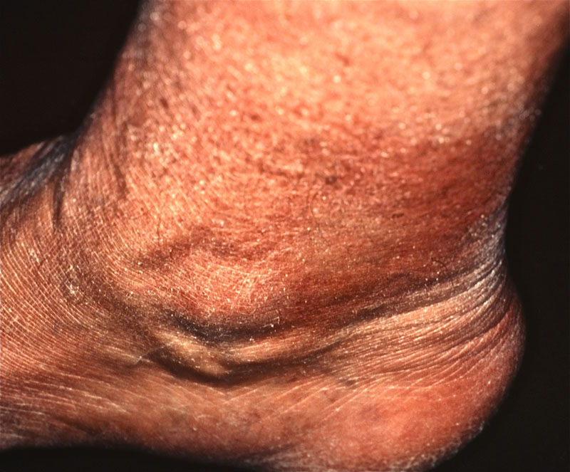 human african trypanosomiasis treatment The current therapeutic treatment of this disease, especially in stage 2, can   human african trypanosomiasis (hat), or sleeping sickness, is a.