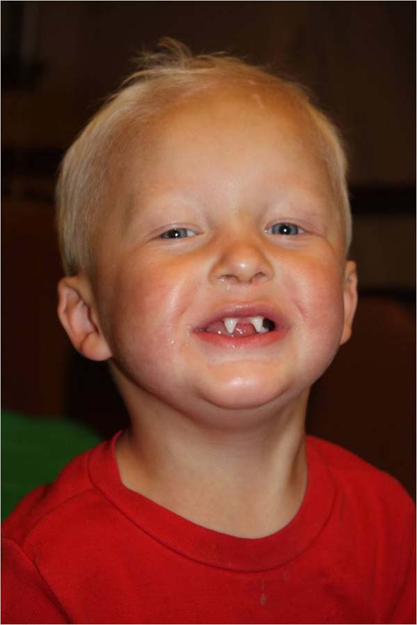 Pictures of Hypohidrotic Ectodermal Dysplasia - #rock-cafe