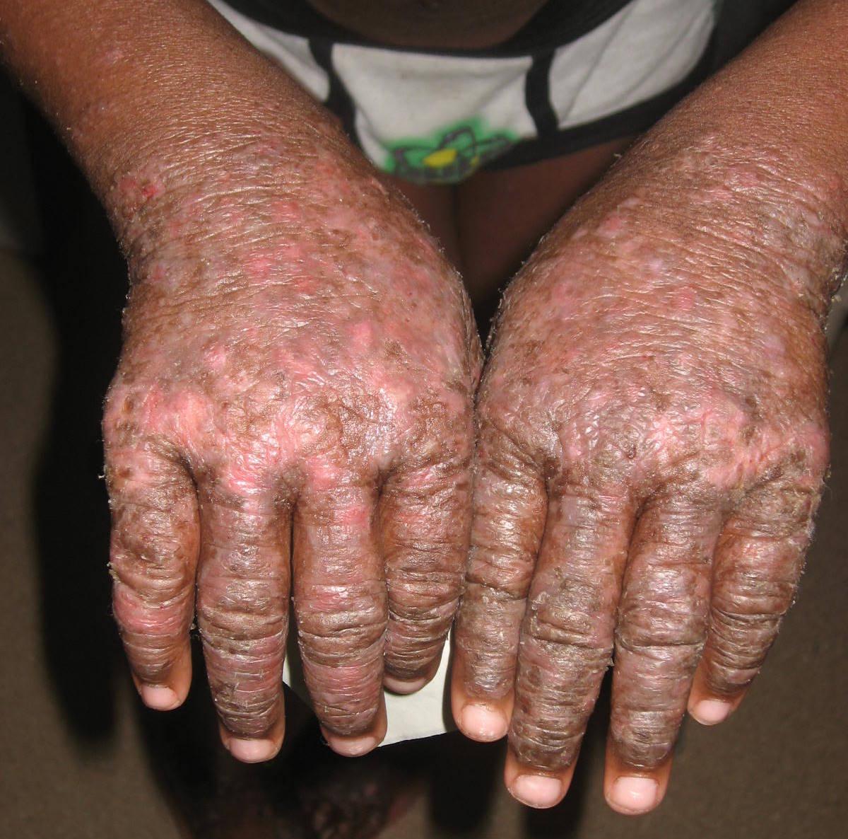 Atopic Dermatitis (Atopic Eczema)
