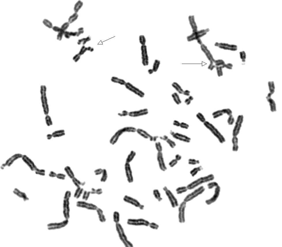 (PDF) Chromosomal Breakage Study in Aplastic Anemia ...