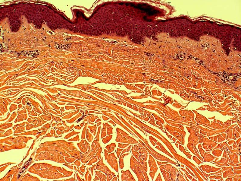 Connective Tissue Nevus