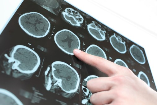 Neuroimaging Helps Predict Post-Stroke Therapy Response