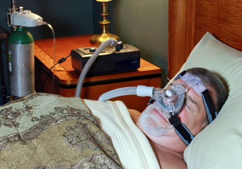 Post-Stroke Cognitive Decline Worse with Sleep Apnea