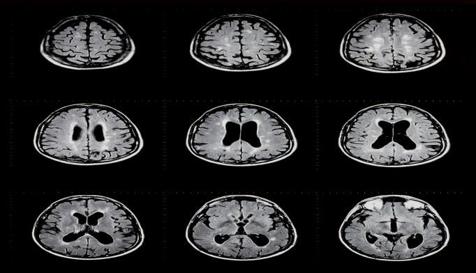 Certain Sites of Brain Lesions in MS Tied to Bowel Incontinence