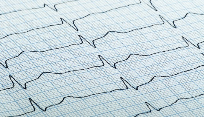 Stroke, Mortality Risk Vary After Carotid Stenting