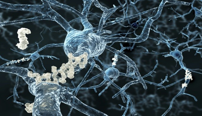 Stress Hormone May Contribute to Amyloid-Beta in Alzheimer's