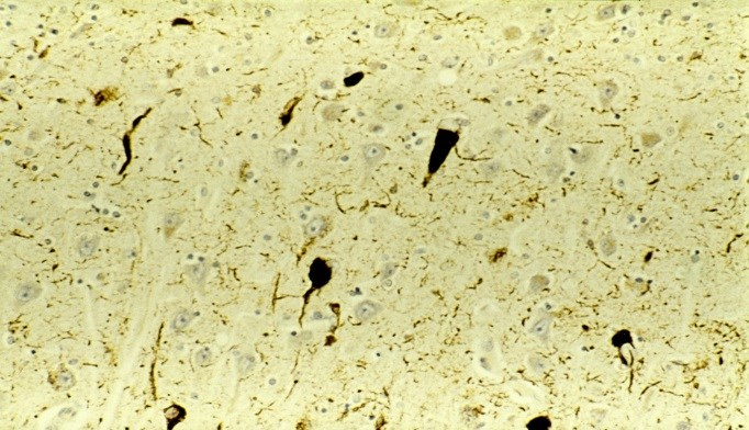 Protein Pattern in Chronic Traumatic Encephalopathy Identified