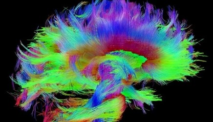 Human Connectome Imaging Advances Could Improve Neurological Care