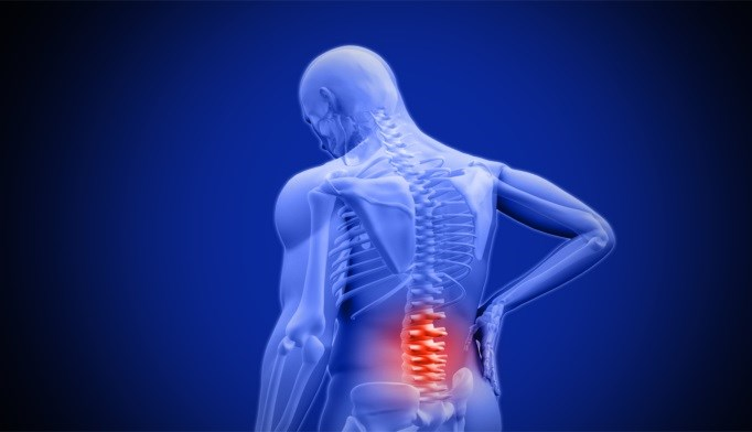 Single Radiation Dose Can Ease Spinal Cord Compression