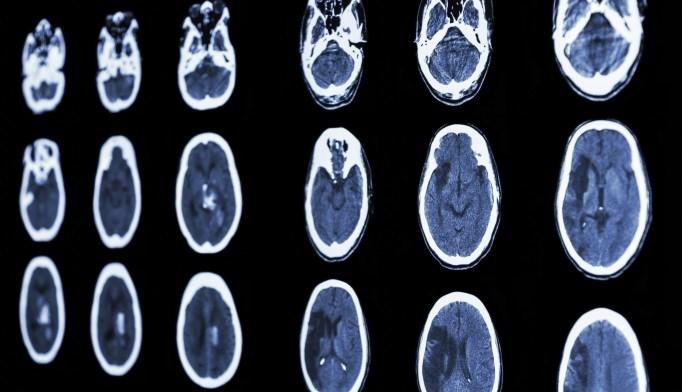 Stroke CT scan
