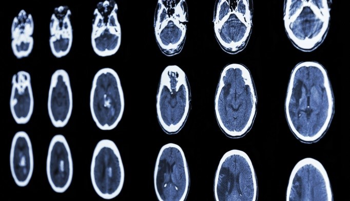 Stroke in Young Adults: Risk Factors and Prognosis