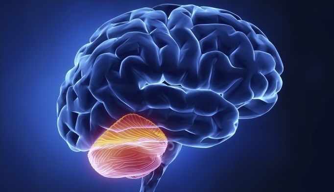 Cerebellar Stimulation May Help Improve Gait and Balance Recovery in Stroke