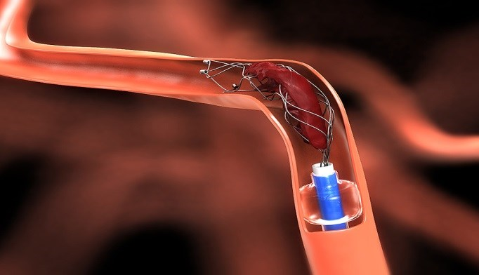 In Acute Stroke, Stent Retrievers Improve Functional Outcome