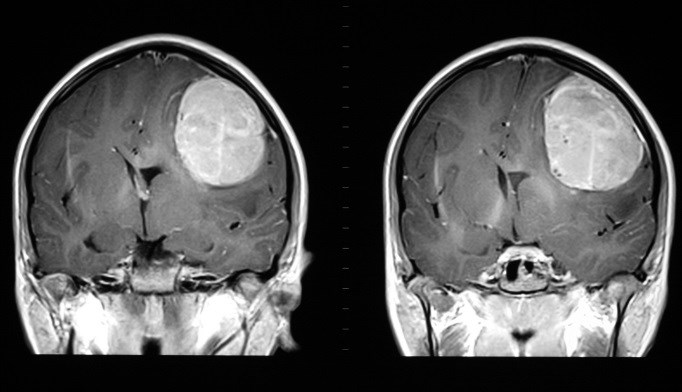 A 42-year-old man recently received gamma knife treatment for brain metastasis and a follow-up physical exam revealed some cardiovascular abnormalities.