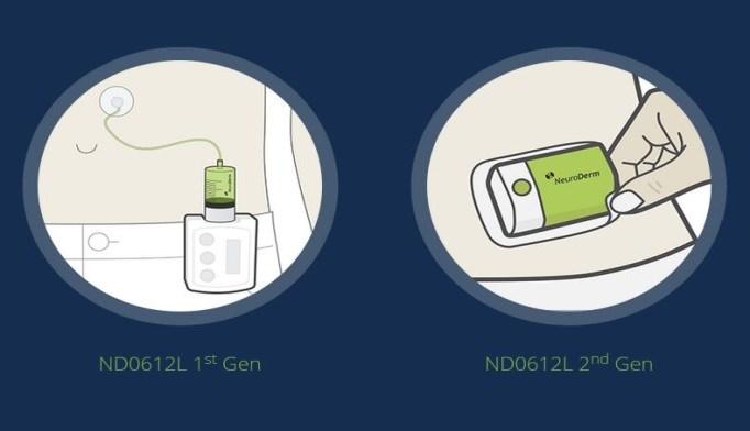 NeuroDerm Drug-Device Product Helps Stabilize Levodopa Levels