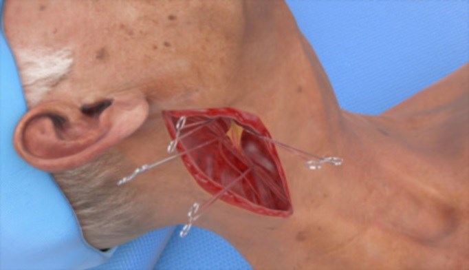 FDA Approves First-Ever Carotid Angioplasty Device for Neck Access
