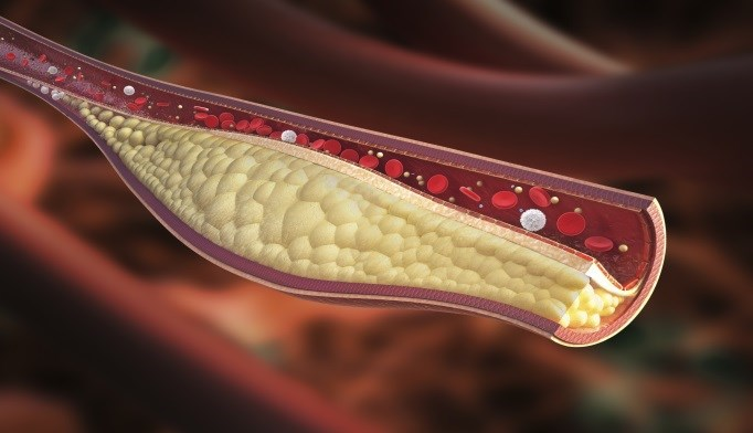 Promising Cholesterol Drug Could Cut Heart Attack, Stroke Risk by Half