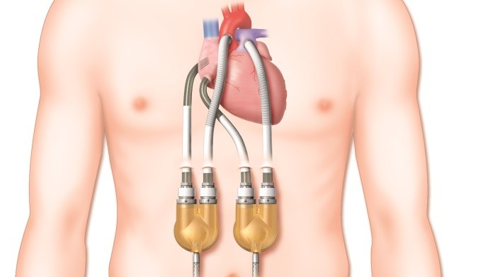 Image Copyright the Thoratec Corporation/ Courtesy American Heart Association