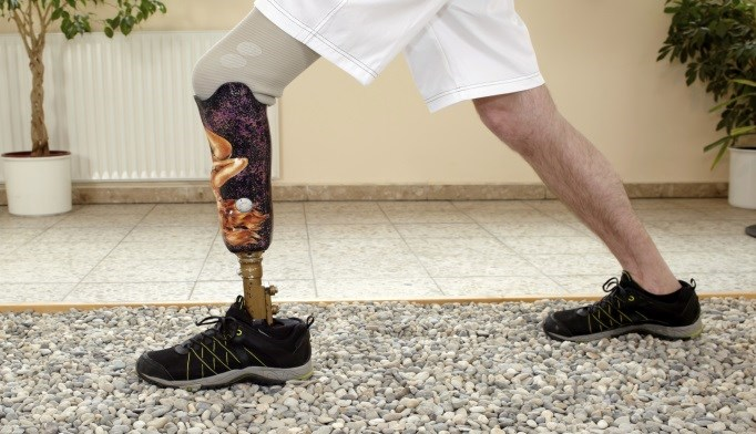 Intuitive Motorized Prosthetic Leg Shows Promise