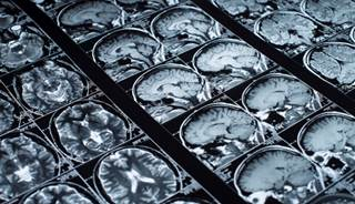 small brain lesions linked to high stroke risk
