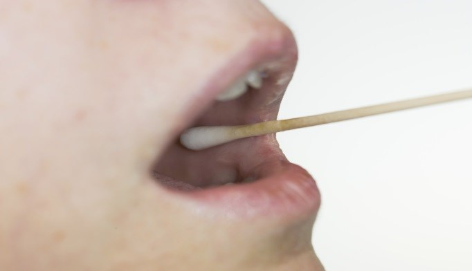 Saliva May Help Distinguish Between Forms of Cognitive Impairment