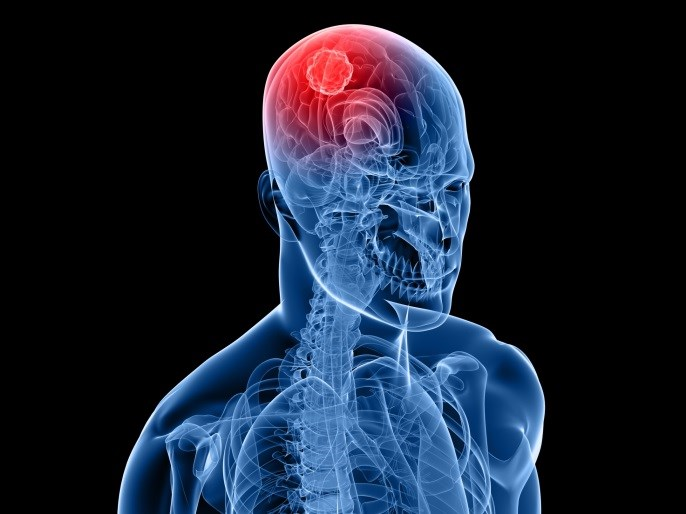 Combination Therapy May Eradicate Glioblastoma Cells