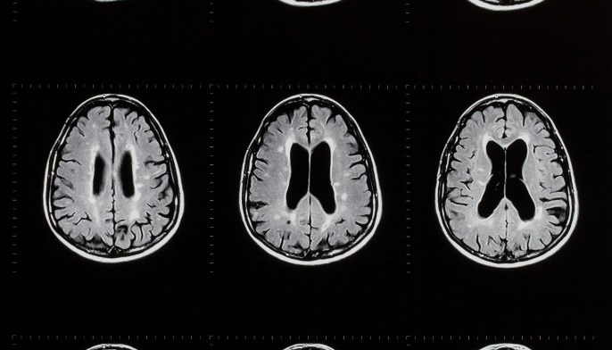 Patients did show a small increase of disease activity on magnetic resonance imaging (MRI) scans following the transition.