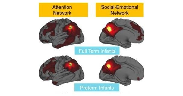 Premature Infants Have Weakened Brain Network Connectivity