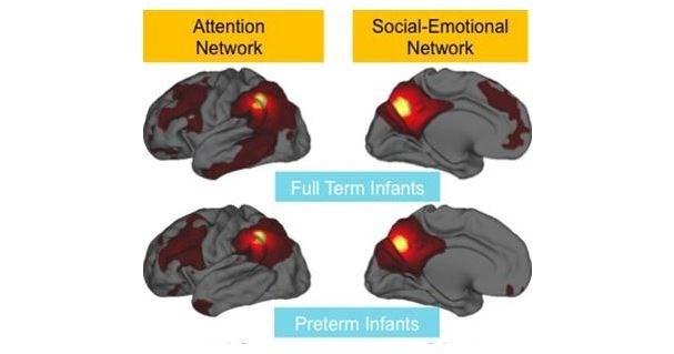 Image courtesy Washington University School of Medicine