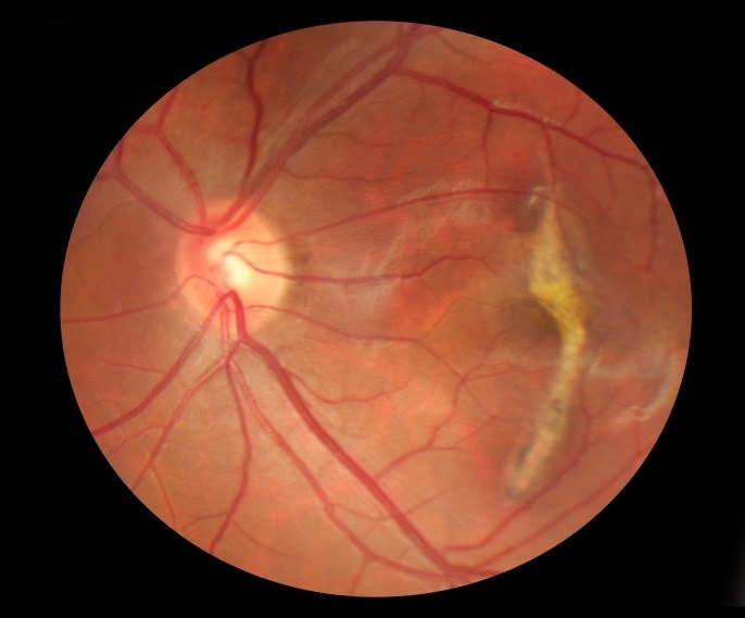 Thinner Retinal Nerve Fiber Layer Tied to Worse Cognitive Function