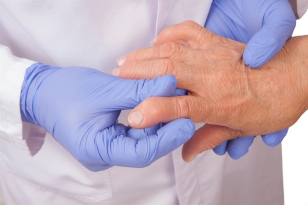Opioids Associated With Infection Risk in Rheumatoid Arthritis